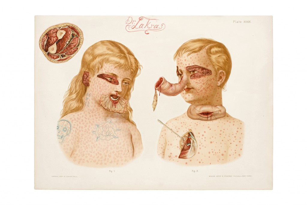 Dr. Lakra  &nbsp -  <strong>Untitled (Case Notes with Snake)</strong> (2007<strong style = 'color:#635a27'></strong>)<bR /> pigment and collage on found print material,   12 1/4 x 16 1/2 inches  (31.3 x 42 cm)